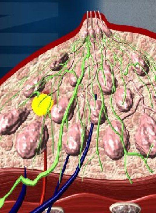 фото образования молочной железы