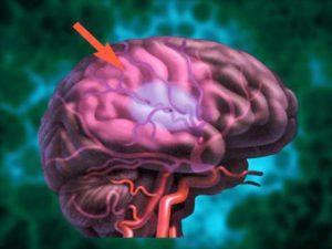нарушение мозгового кровообращения  2