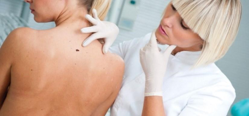 кожные болезни