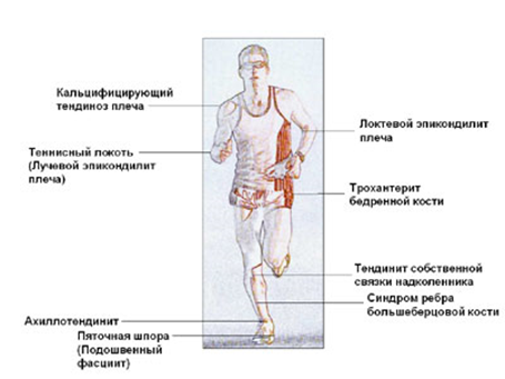 udarno-volnovaya-terapiya4