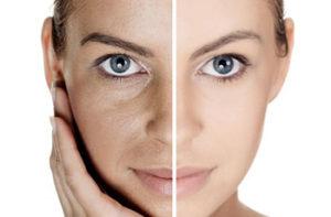 Оздоровление кожи с помощью плазмолифтинга