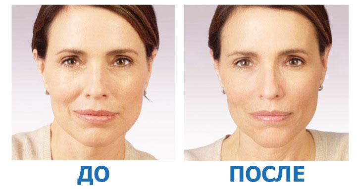 до и после плазмолифтинга